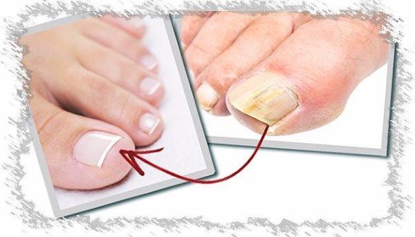 Инструкция по применению лака Офломил. Цена лака для ногтей