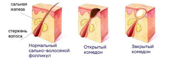 Разновидности высыпаний на коже
