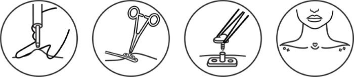 Микродермал на шее, лице, руке, грудной клетке, ключице, пояснице. Что это, фото пирсинга. Как делается и крепится