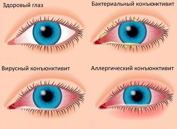 Аллергия на нарощенные ресницы. Симптомы, что делать, чтобы не снимать, последствия, капли
