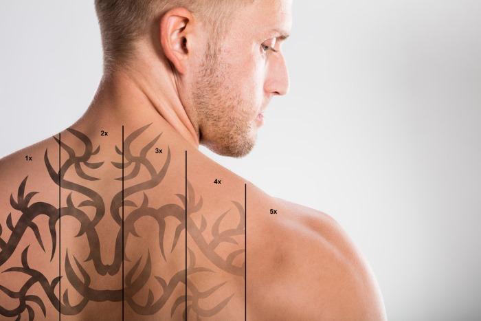 Как вывести татуировку лазером, рецепты в домашних условиях без шрамов. Фото до и после