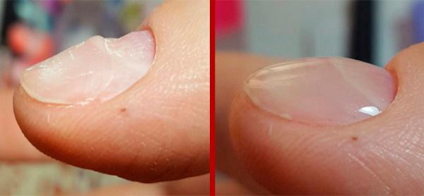 Как выравнивать ногтевую пластину на ногах, руках базой, биогелем, гелем Kodi, Блюскай, Окси