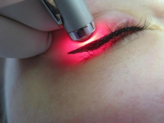 Удаление татуажа глаз лазером с век. Фото до и после, последствия