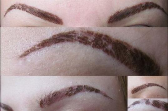 Неудачный татуаж бровей. Фото до и после, как исправить с растушевкой и без